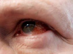 Emergency Eye Clinic featured